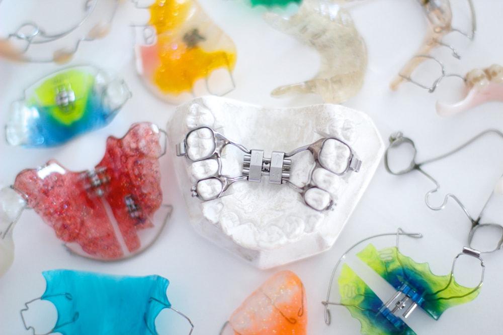 Types d'appareils dentaires pour les traitements en orthodontie
